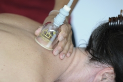 cupping-tx-1